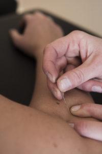 Bruk av Intra Muskulær Stimulering med nåler
