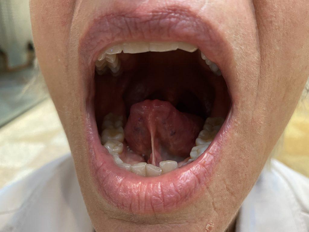 Kort tungebånd illustrert ved et bilde mkort tungebånded